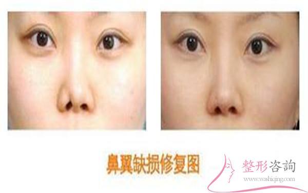 做鼻翼缺损修复手术时间是多久?