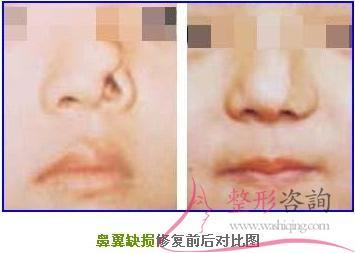 做鼻翼缺损修复手术多少钱?