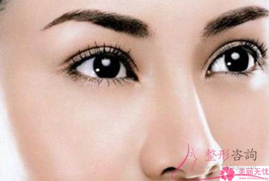 E光消灭黑眼圈的复原天数有多久?