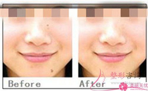 做电离子改善雀斑容不容易暴发副作用?
