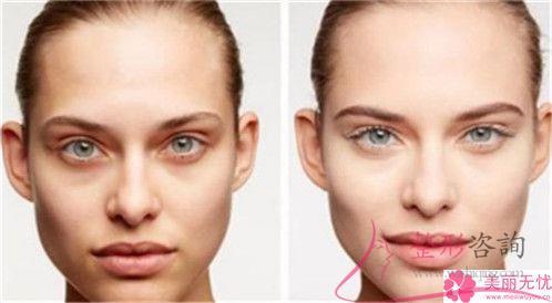 果酸换肤效果能维持多久长时间