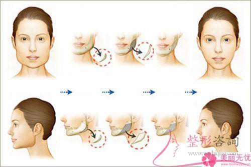 硅胶或膨体隆下巴颏儿整形手术价格表