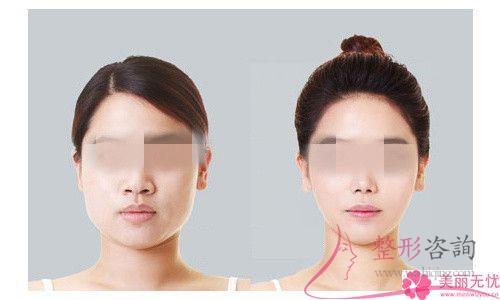 脉冲光唇部除毛后几个月的时间能够清理面部污垢