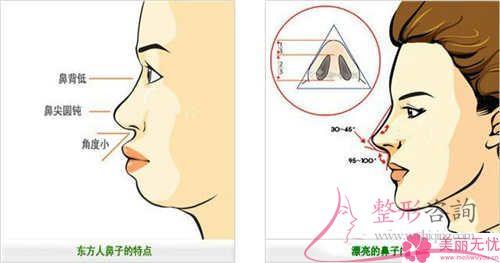 二段式鼻整形手术找准适当的原材料重要吗?