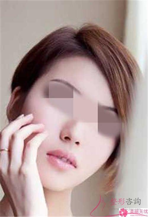 伊维兰面部填充的效果能维持多久呢