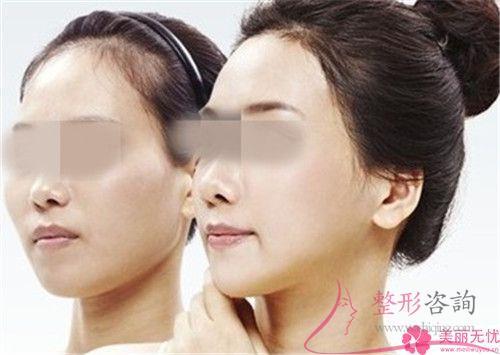 假体面部填充怎么护理效果好