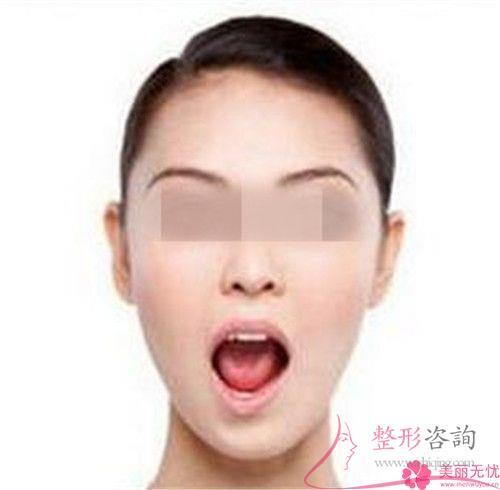 胶原蛋白物质可以作用于重整下巴吗?